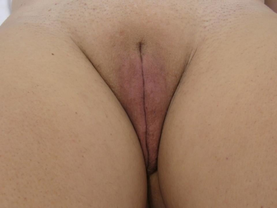 Bald fat pussy 11