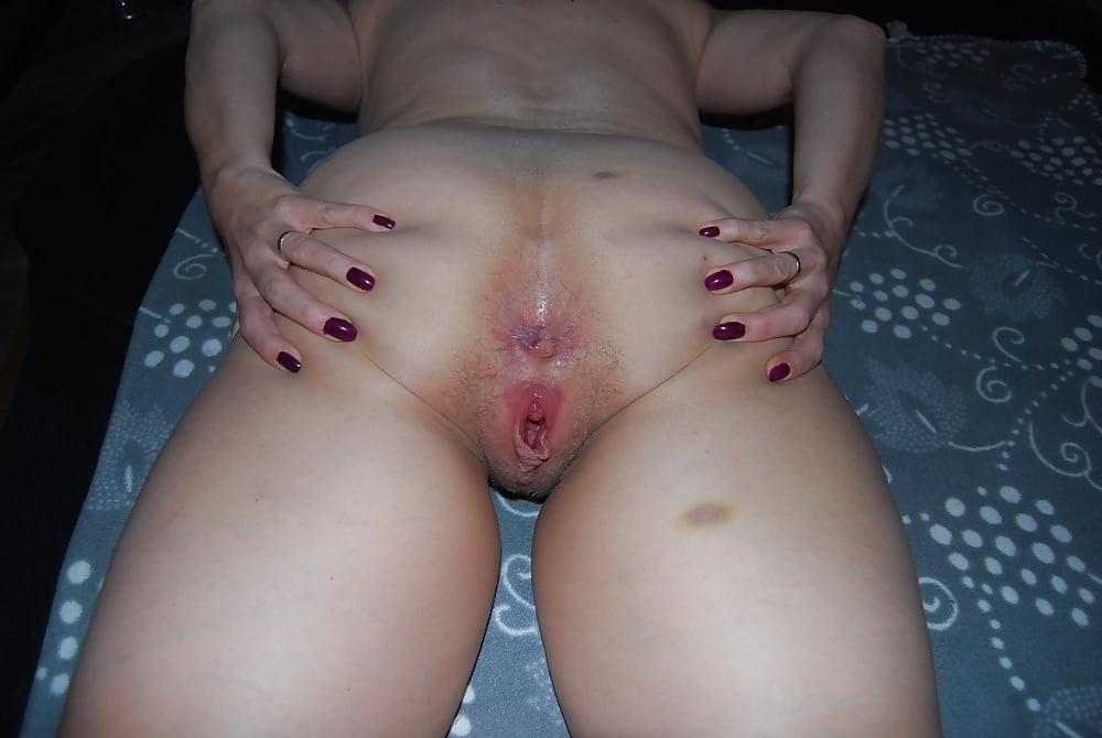 Skinny - 179 Pics