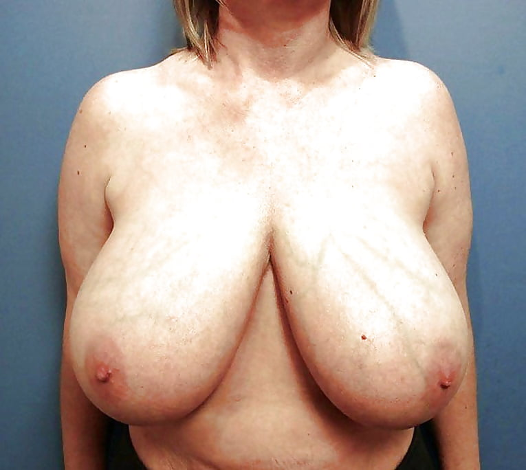 Breast lift areola reduction cost-3890