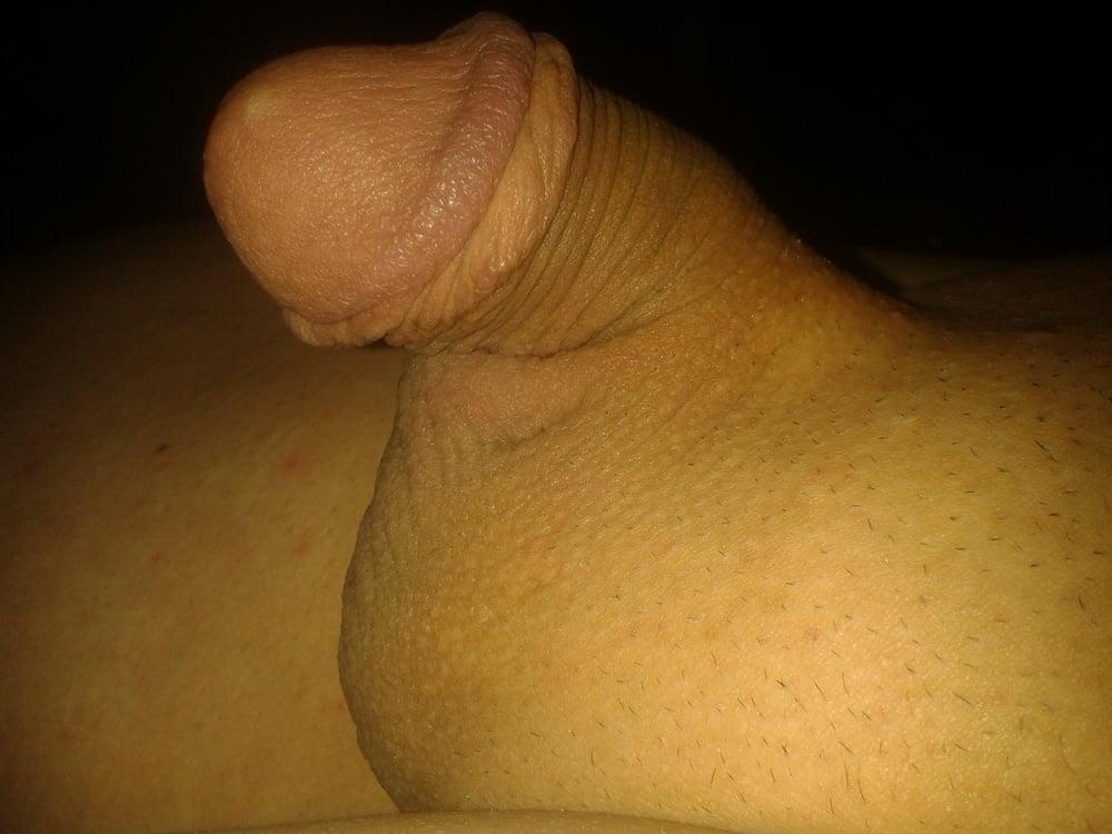 Penis gets cut