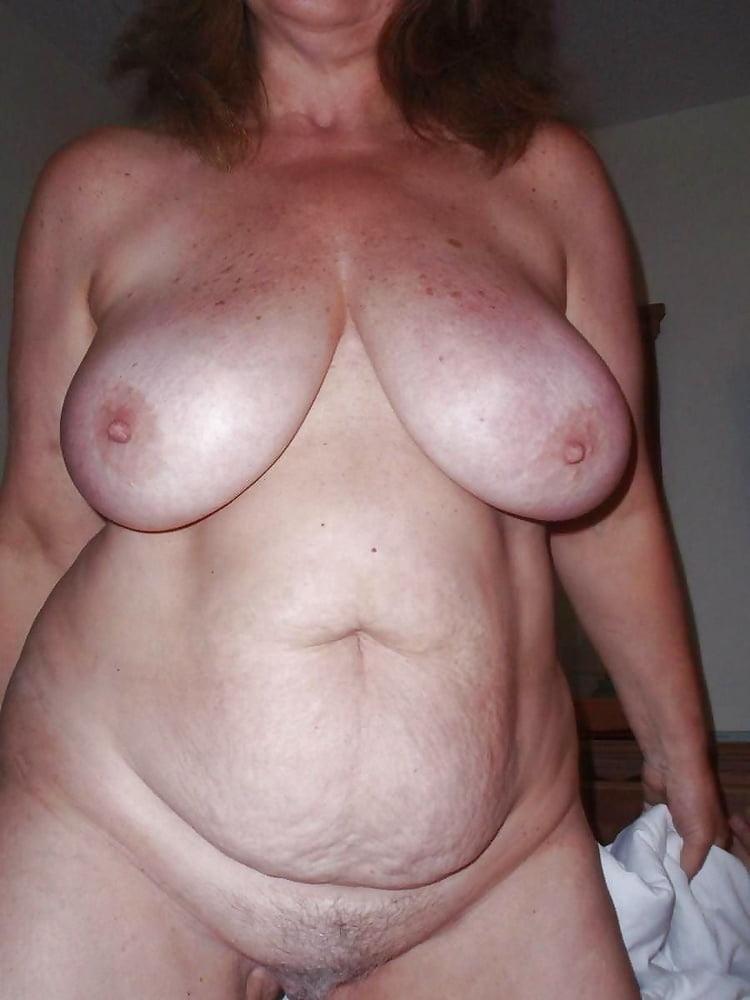 Bbw Saggy Tits Stretch Marks Are Mistaken