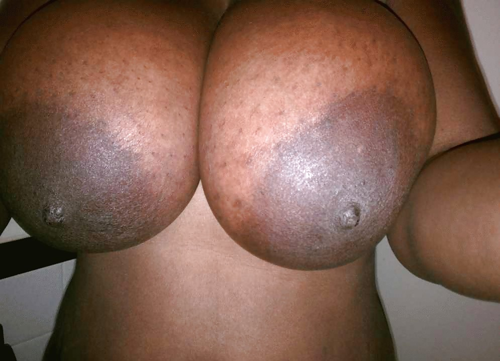 Ametuer big areola nipple