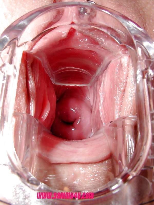 видео внутри молодняк вагина