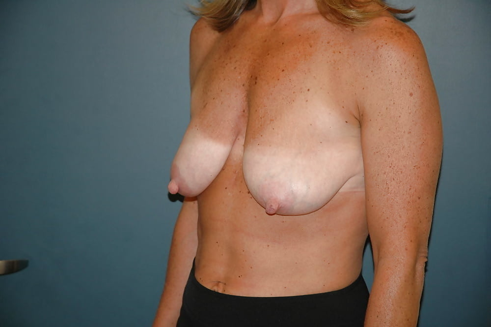 Saggy Breasts In Porn