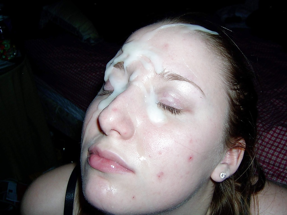 Acne Girls Need Cum on Their face - 11 Pics - xHamster.com