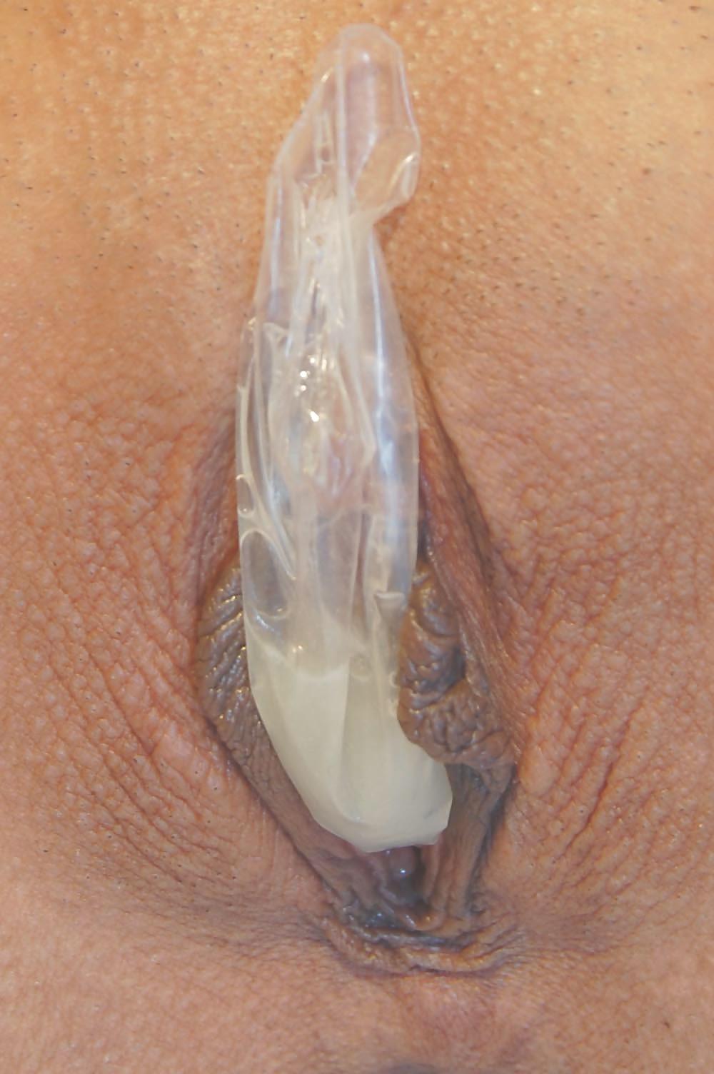 condoms-for-vaginal-burning