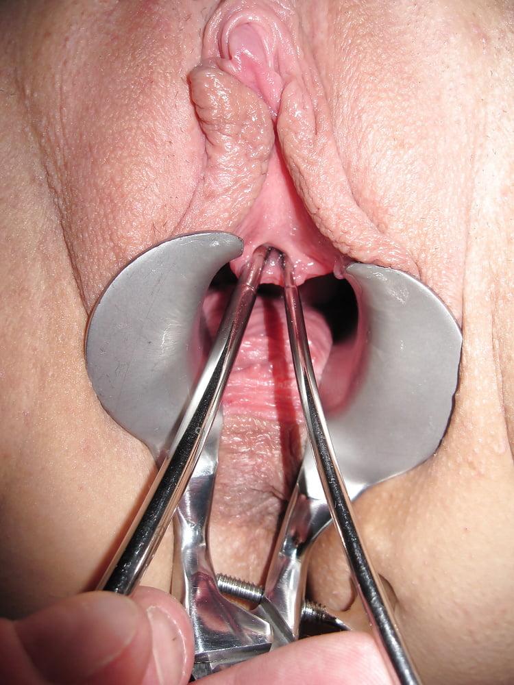 фото женской уретры и ануса пять