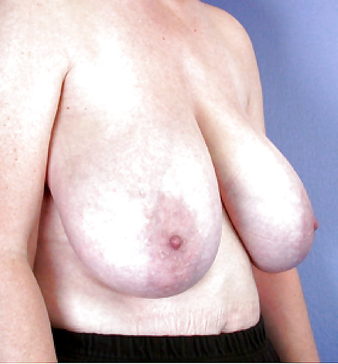 Breast lift areola reduction cost-2825