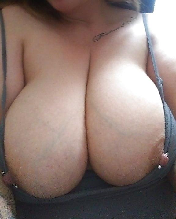 Swollen tits