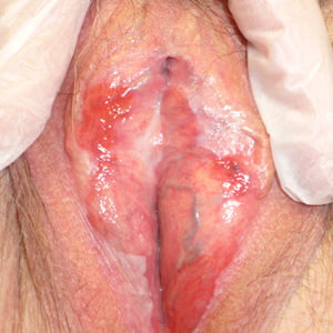 Genital Ulcers Caused By Epstein