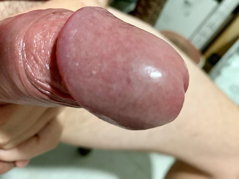 Showing Porn Images For Mushroom Glans Porn