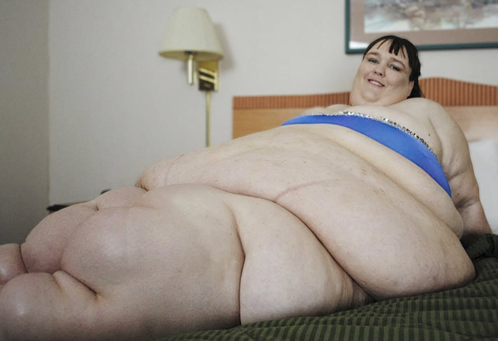 Morbidly obese people naked — img 6