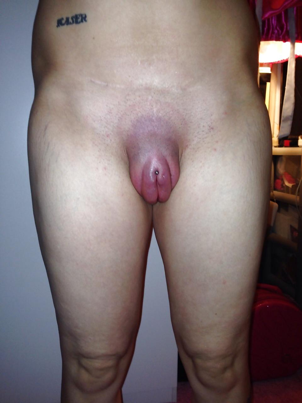 Nude diabetic swelling